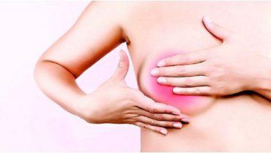 Photo of Avanza tratamiento personalizado contra el cáncer de mama
