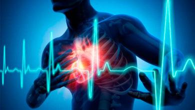 Photo of Detectarían riesgo de mal cardíaco con análisis de sangre