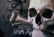 Photo of Hombre se cortó nariz y orejas para lucir como un cráneo real