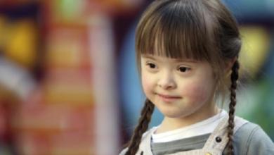 Photo of Reitera IMSS capacidad para atender a pacientes con Sindrome de Down