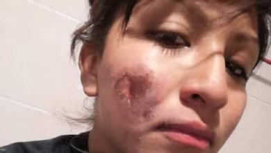 Photo of Policía sufrió quemaduras en rostro durante el 8M