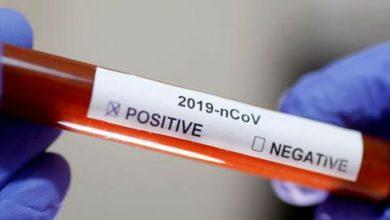 Photo of Rusia enviara pruebas para detectar coronavirus a más de 30 países