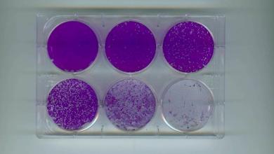 Photo of Conacyt aprobó proyecto de la UV para evaluar inmunidad al SARS CoV-2