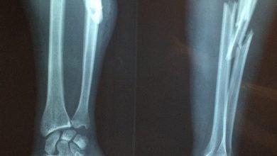 Photo of Adultos mayores y niños, los más recurrentes en urgencias por fracturas: IMSS
